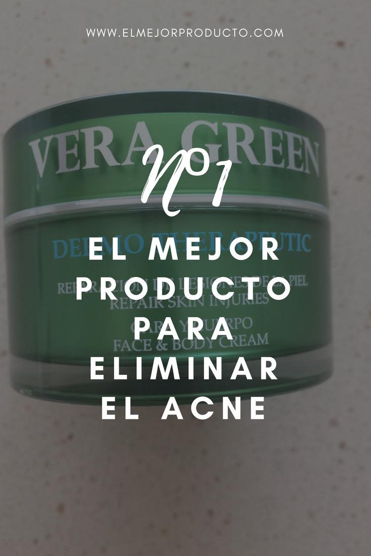Pinterest-el-mejor-producto-para-el-acne El Mejor Producto para el Acné