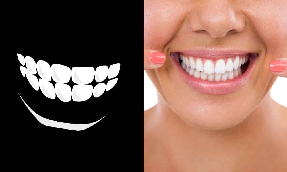 El mejor blanqueador dental - El mejor producto para blanquear los dientes